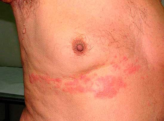 Опоясывающий герпес (лишай): причины, симптомы, лечение