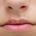 Герпетическая инфекция (герпес) на губах