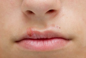 Герпес губ