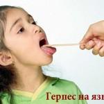 Причины возникновения и лечение герпеса на языке
