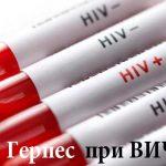 Герпес при ВИЧ-инфекции