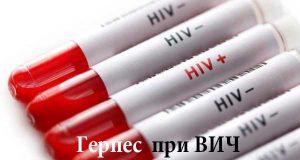 Герпес и ВИЧ